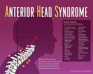 Chiropractic Eureka MO Anterior Head Syndrome
